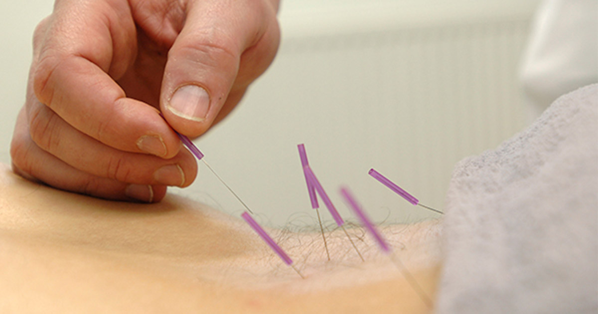Person with acupuncture needles in their lower back