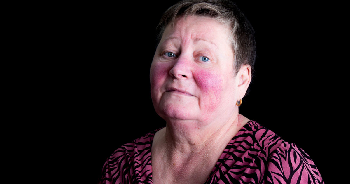 Woman has a butterfly rash on face