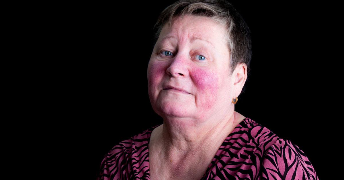 Woman has a butterfly rash on face