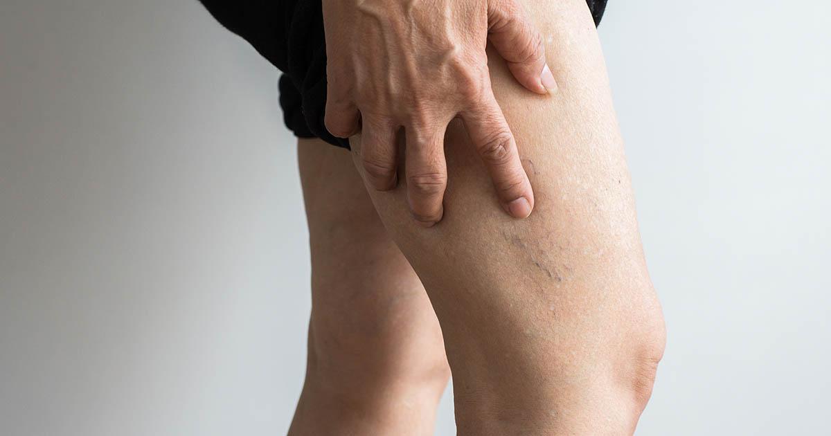 Varicose veins on the elderly woman's legs