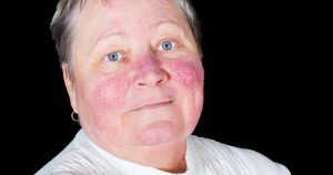 Woman has lupus butterfly rash on face