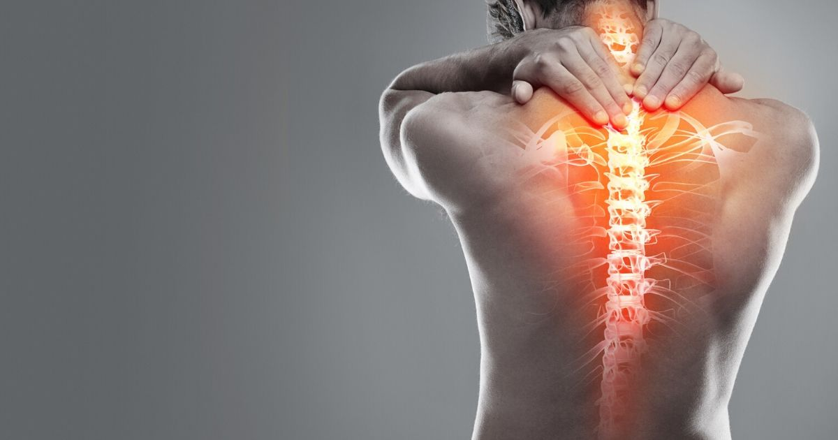 a man's back with spinal inflammation caused by lupus myelitis