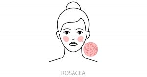 an icon showing what a rosacea rash looks like